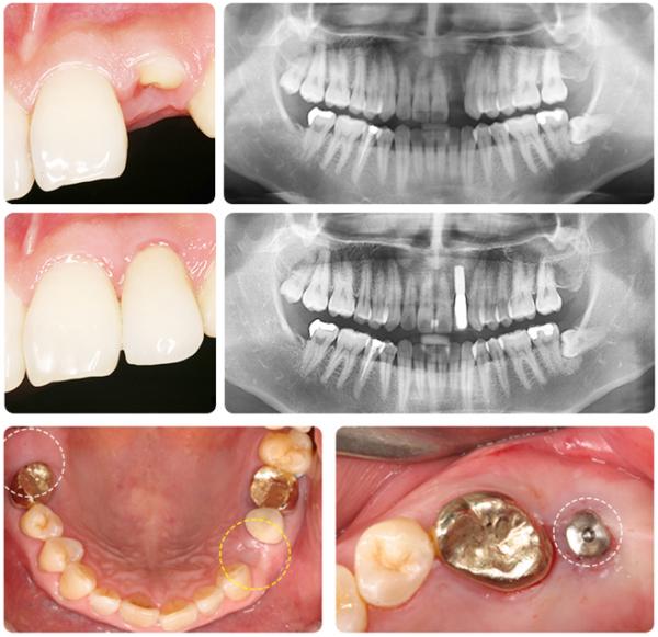 Hình ảnh bệnh nhân Trồng răng implant