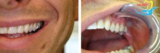 trồng răng sứ kim loại có khả năng chịu lực tương tác tốt