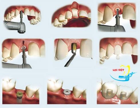 quá trình trồng răng sứ như thế nào với phương pháp cắm ghép implant