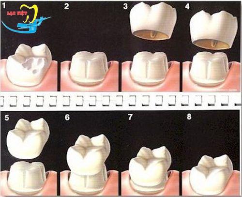 quá trình trồng răng sứ như thế nào với phương pháp làm cầu răng sứ