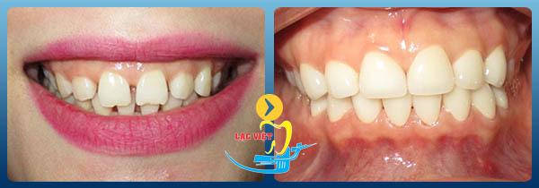 tìm hiểu Ưu điểm của răng sứ Cercon tại nha khoa Lạc Việt