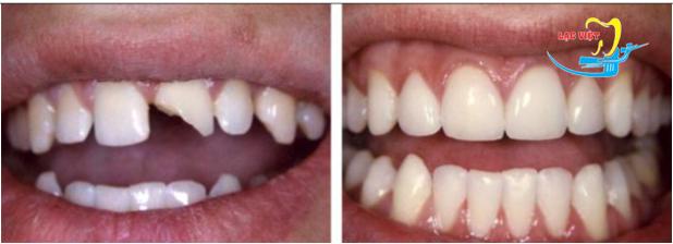 Bọc răng sứ veneer ở đâu tốt đòi hỏi đó phải là cơ sở đã điều trị thành công cho rất nhiều trường hợp bệnh nhân