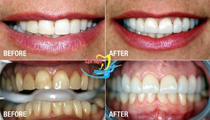 Làm rõ bọc răng sứ Veneer là gì