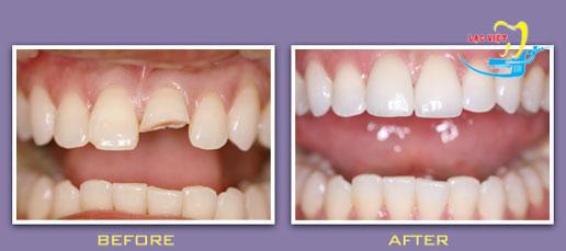 độ bền của răng sứ titan ra sao