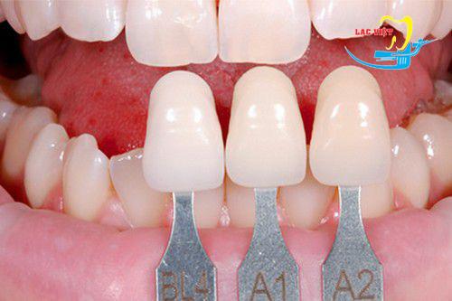 Bọc răng sứ veneer ở đâu tốt