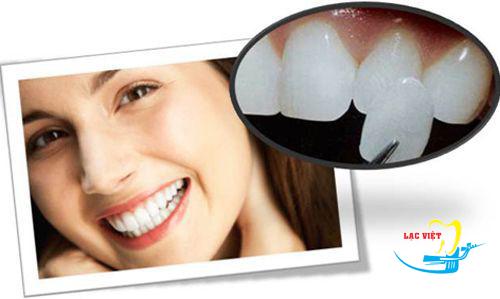 Trồng răng thẩm mỹ là biện pháp khôi phục răng hoàn hảo