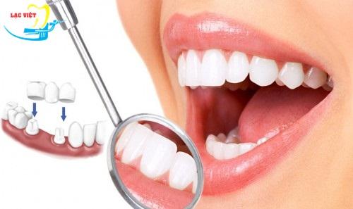 Bảng giá trồng răng giả theo phương pháp làm cầu răng