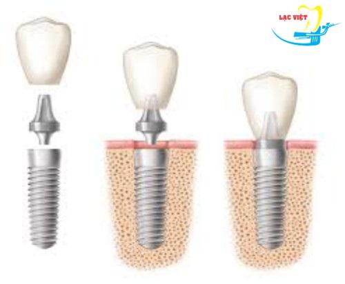 cấy ghép implant là một trong các phương pháp trồng răng giả cố định
