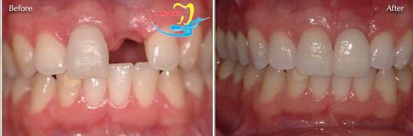 kết quả phục hình làm cầu răng trong các phương pháp trồng răng