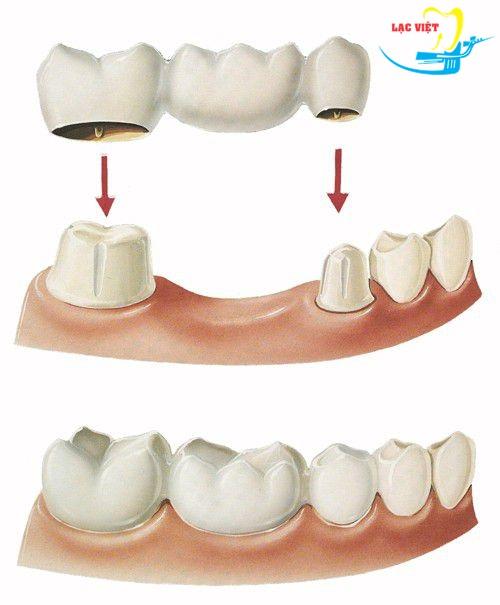 làm cầu răng sứ là một trong các phương pháp trồng răng phổ biến nhất hiện nay