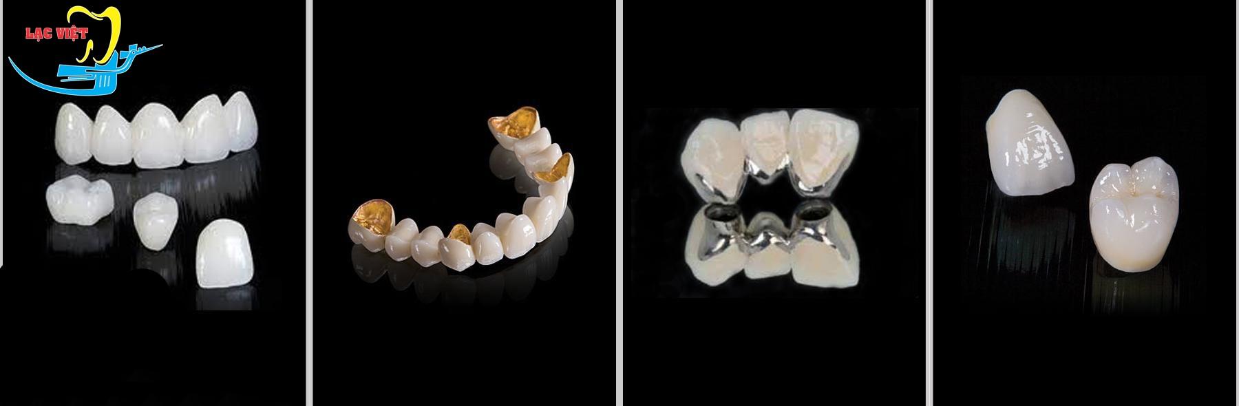 Trồng răng giả bao nhiêu tiền phụ thuộc vào những yếu tố nào?