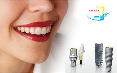 Cắm ghép Răng Implant