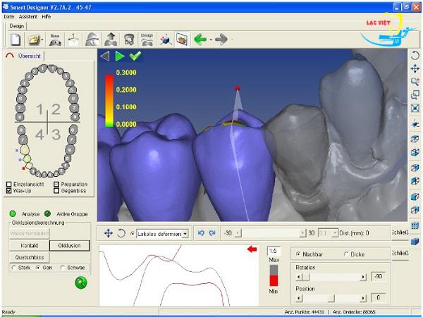 trồng răng giả mất bao lâu sẽ được tối ưu với công nghệ Cad/Cam