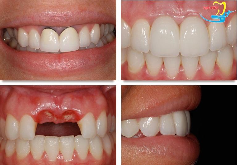 hình ảnh trước và sau khi trồng răng sứ của bệnh nhân tại nha khoa Lạc Việt