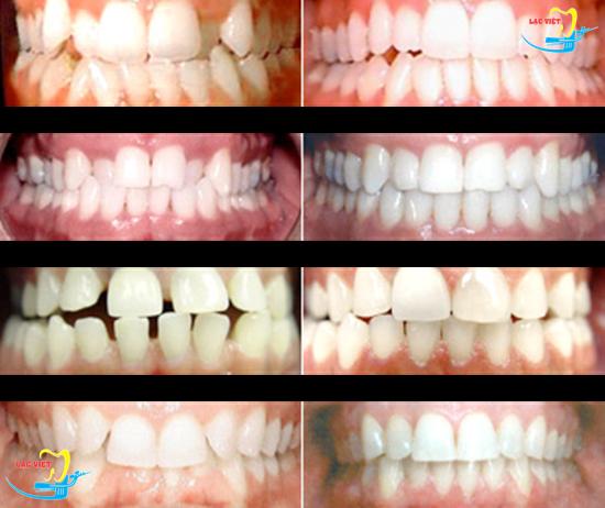 niềng răng invisalign là gì và kết quả