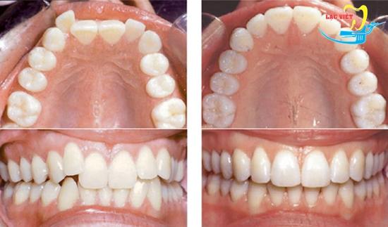 Đeo niềng răng không mắc cài invisalign có đau không và kết quả