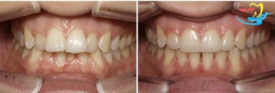 Niềng răng bằng nhựa và kết quả