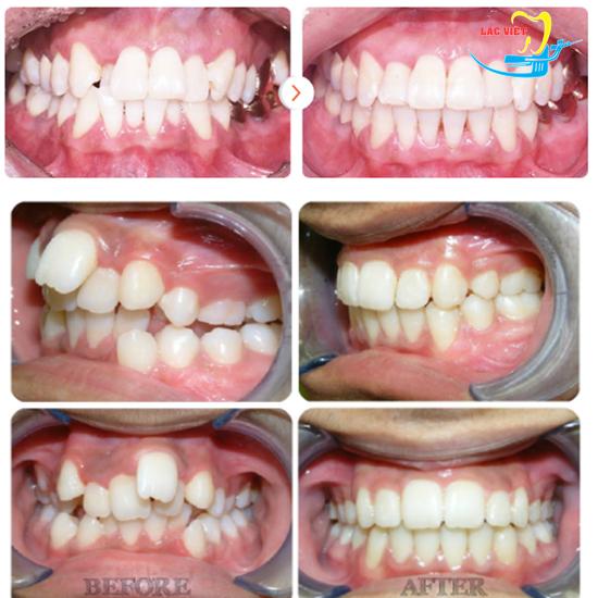 Hình ảnh trước và sau khi niềng răng hô móm lệch lạc