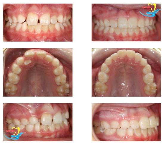 niềng răng không mắc cài ở đâu và kết quả