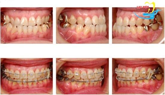 Răng móm là gì và kết quả niềng răng