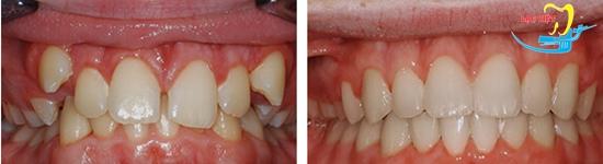 Kết quả niềng răng mắc cài pha lê