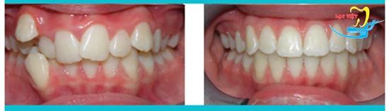 niềng răng như thế nào và kết quả
