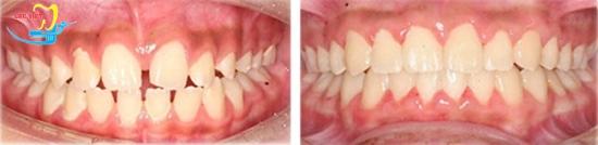 Chỉnh răng thưa ở đâu tốt và kết quả