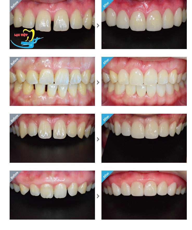 trồng răng giả khắc phục nhược điểm của hàm răng