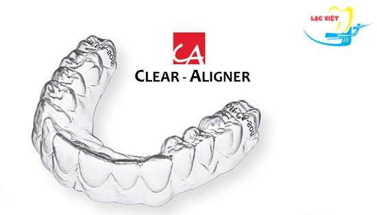 Giá tiền niềng răng không mắc cài Clear Aligner thấp hơn Invisalign