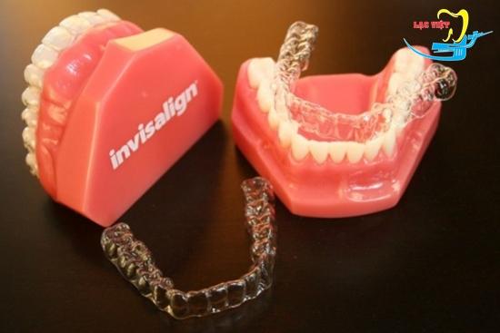 chi phí niềng răng không mắc cài phụ thuộc vào loại khay niềng bạn lựa chọn