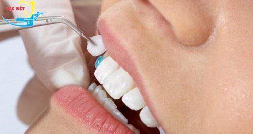 làm sao để có răng nanh với phương pháp bọc răng sứ?