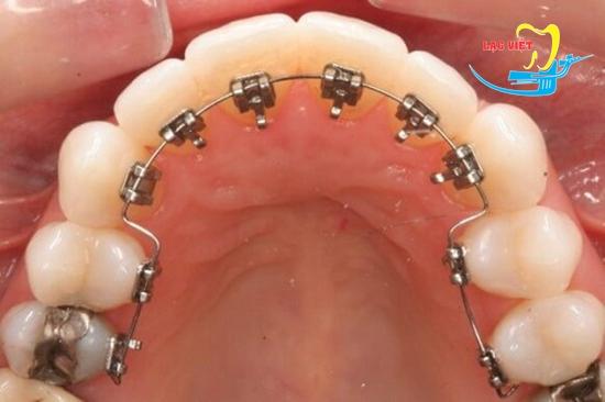 niềng răng mắc cài trong là gì