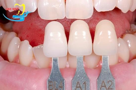 miệng móm là sao và bọc răng sứ chữa móm