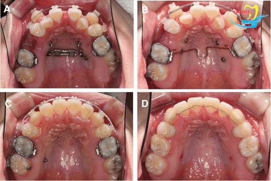 Nhổ răng để niềng có ảnh hưởng gì không và kết quả