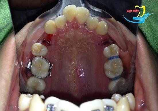 nhổ răng khi niềng răng có ảnh hưởng gì không