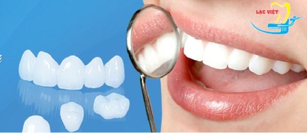 những lợi ích giúp bạn trẻ lời trồng răng sứ có tốt không?