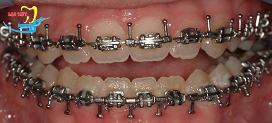 Chữa răng móm bằng niềng răng