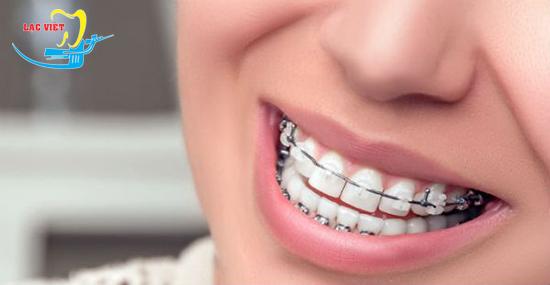 niềng răng cho răng bị thưa