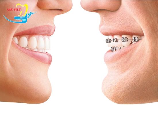 Niềng răng hô móm lệch lạc là gì