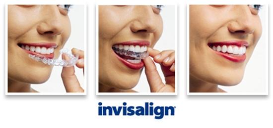 Giải đáp niềng răng invisalign là gì