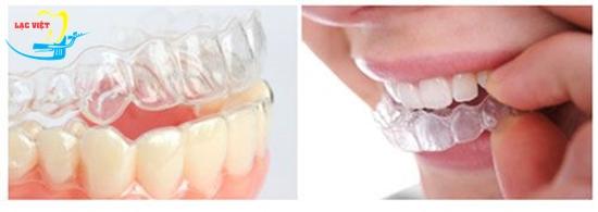 niềng răng không mắc cài bao nhiêu tiền và phương pháp này là gì