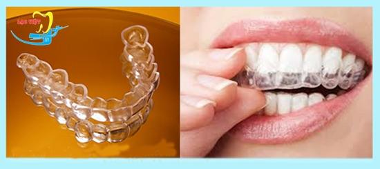 Nẹp răng nhựa là phương pháp như thế nào