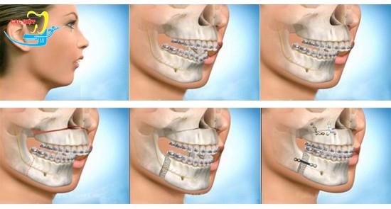 chỉnh hàm móm giá bao nhiêu với công nghệ phẫu thuật 3D