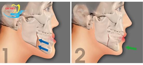 Răng móm là gì và cách khắc phục bằng phẫu thuật