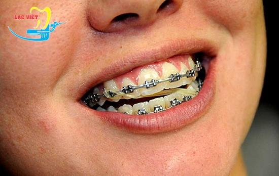 Miệng móm là sao và phương pháp niềng răng