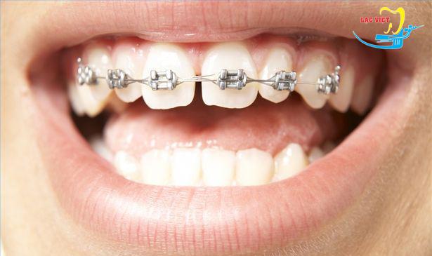 Phương pháp niềng răng thưa thẩm mỹ