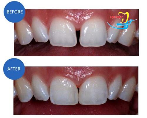 phương pháp trám răng thưa hiệu quả nhất