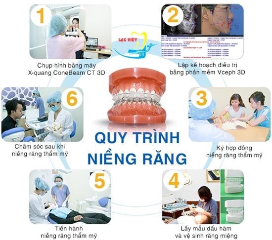 Các bước niềng răng hô tại nha khoa uy tín