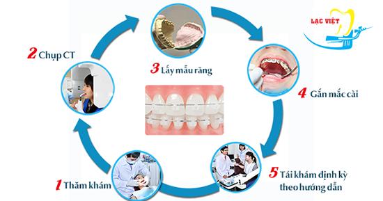 Quy trình niềng răng thưa an toàn nhất