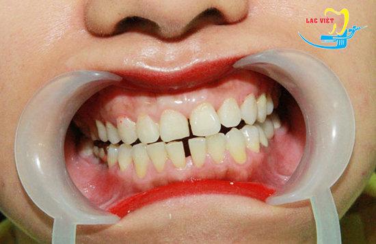 răng thưa làm thế nào